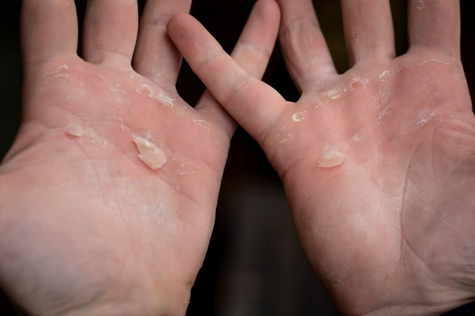 I got a little enthusiastic at Trapeze lessons recently. Getting my hands through the weekend was part of the challenge too.